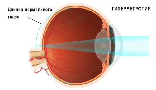 Дальнозоркость | Лечение дальнозоркости у детей в Новосибирске в ...